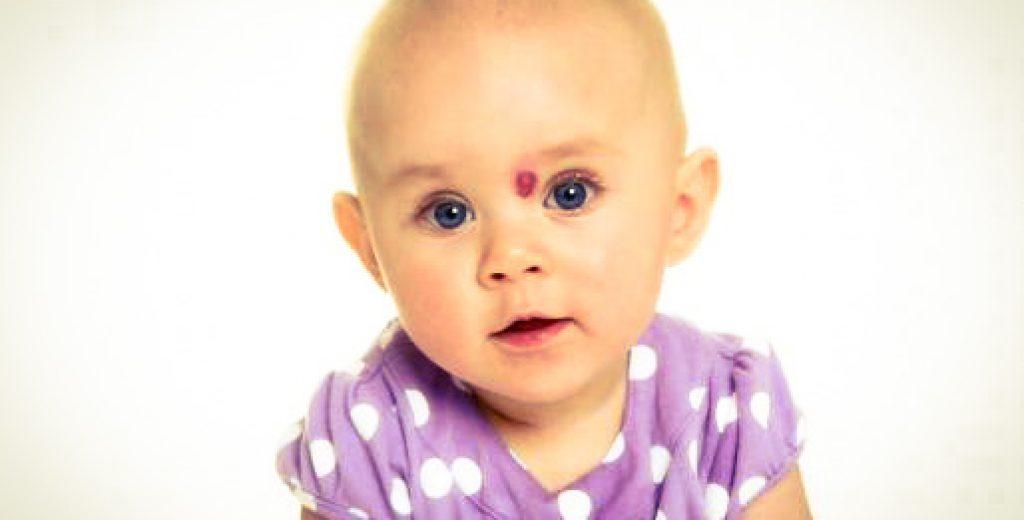 infantilni hemangiom